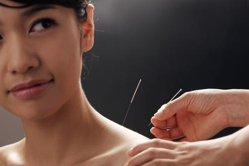 6 Conditions You Can Treat With Acupuncture