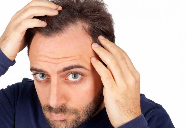 Treating Hair Loss With Hair Transplant Surgery In Turkey
